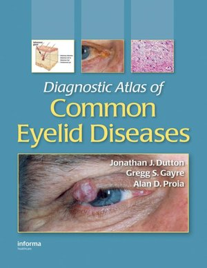 Diagnostic Atlas of Common Eyelid Diseases Informa Healthcare Alan D. Proia, Gregg S. Gayre, Jonathan J. Dutton